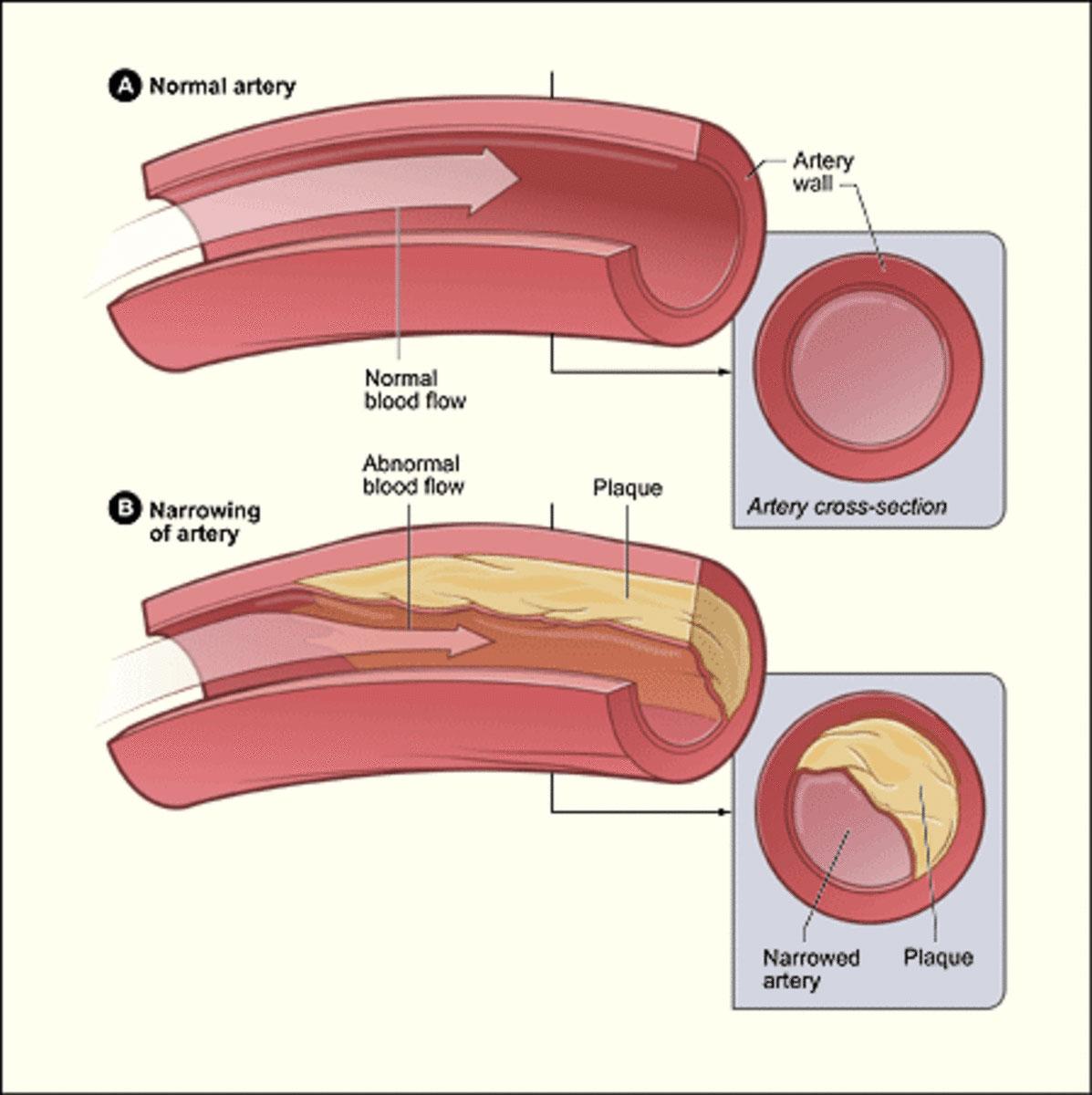 image therapie | claudicatio intermitten | fysio Roode Berghem